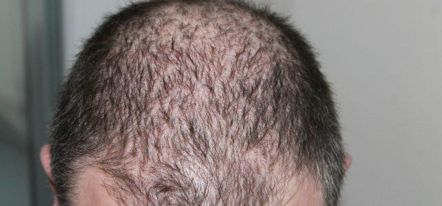 Haarausfall – natürlich behandeln